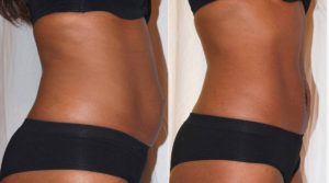 Inch-Loss-Before-and-After-laser-treatment-for-stomach