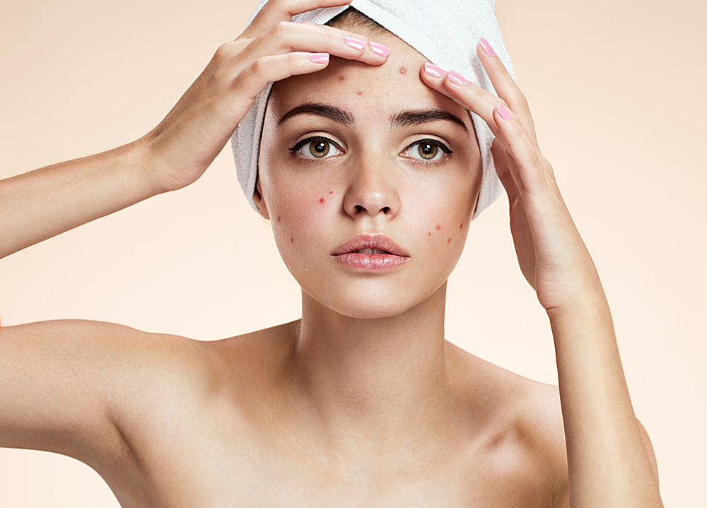 Acne Problems?  We can help at Skincare by Candy!