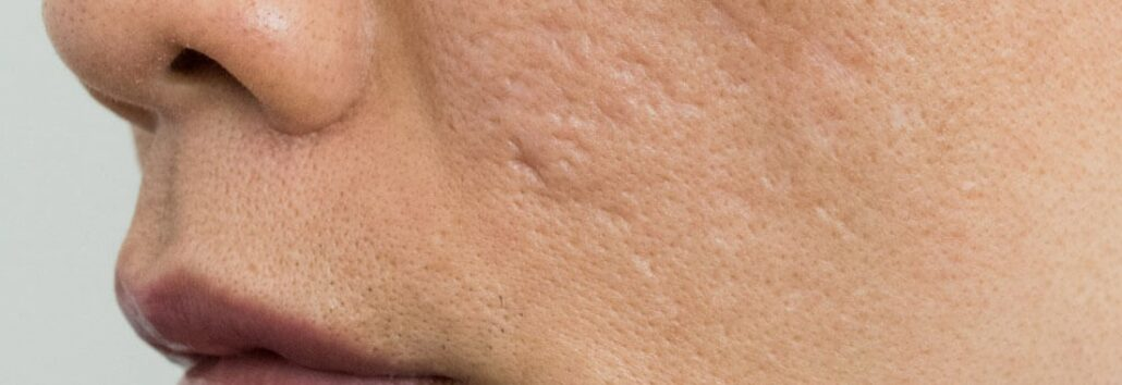 Acne Problems?  We can help!